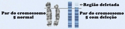 cromossomo 5